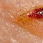 væggelus symptomer ses efter bid